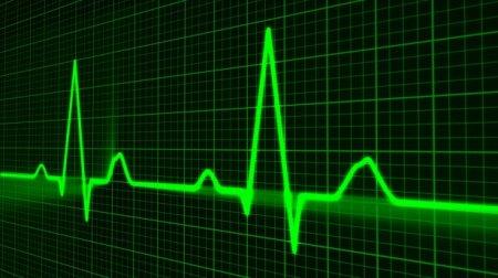 В Испании врачи спасли женщину после шестичасовой остановки сердца